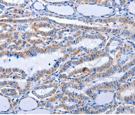 Immunohistochemistry (Formalin/PFA-fixed paraffin-embedded sections) - Anti-GDF3 antibody (ab197390)