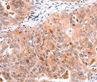 Immunohistochemistry (Formalin/PFA-fixed paraffin-embedded sections) - Anti-BTG3 antibody (ab197399)