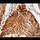 Immunohistochemistry (Formalin/PFA-fixed paraffin-embedded sections) - Anti-ABCB5 antibody (ab197406)