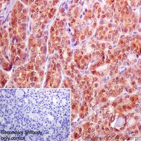 Immunohistochemistry (Formalin/PFA-fixed paraffin-embedded sections) - Anti-Galectin 3 antibody [EP2775Y] - BSA and Azide free (ab197544)