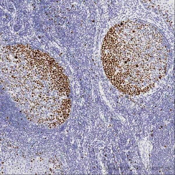 Immunohistochemistry (Formalin/PFA-fixed paraffin-embedded sections) - Anti-Ki67 antibody [SP6] - BSA and Azide free (ab197547)