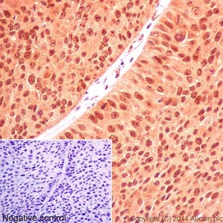 Immunohistochemistry (Formalin/PFA-fixed paraffin-embedded sections) - Anti-U2AF35/U2AF1 antibody [EPR12648(2)] (ab197591)