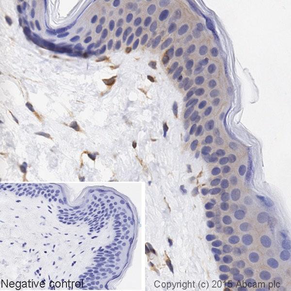 Immunohistochemistry (Formalin/PFA-fixed paraffin-embedded sections) - Anti-Paxillin antibody [Y113] (HRP) (ab197612)