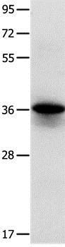 Western blot - Anti-Myozenin 1 antibody (ab197660)