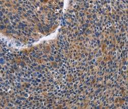 Immunohistochemistry (Formalin/PFA-fixed paraffin-embedded sections) - Anti-IGSF10 antibody (ab197671)