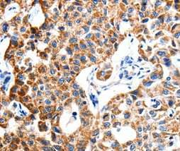 Immunohistochemistry (Formalin/PFA-fixed paraffin-embedded sections) - Anti-ITGB6 antibody (ab197672)