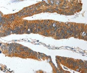 Immunohistochemistry (Formalin/PFA-fixed paraffin-embedded sections) - Anti-IL-12RB1 antibody (ab197685)