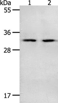 Western blot - Anti-NME6 antibody (ab197686)