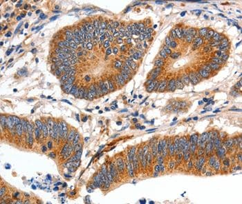 Immunohistochemistry (Formalin/PFA-fixed paraffin-embedded sections) - Anti-Slow Skeletal Myosin Heavy chain antibody - C-terminal (ab197687)
