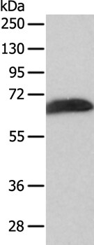 Western blot - Anti-SPATA16 antibody (ab197691)