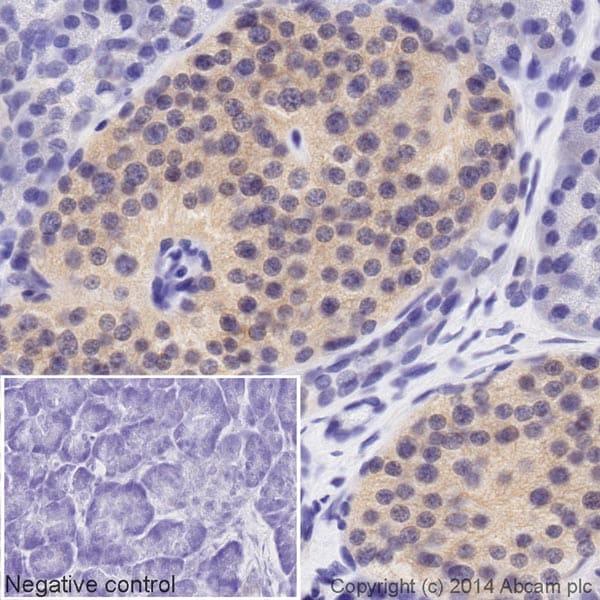 Immunohistochemistry (Formalin/PFA-fixed paraffin-embedded sections) - Biotin Anti-PP2A alpha + beta antibody [E155] (ab197706)
