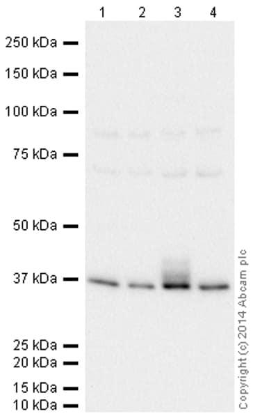 Western blot - Anti-67kDa Laminin Receptor antibody [EPR8469] (HRP) (ab197712)