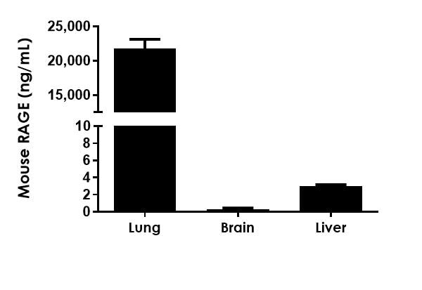RAGE concentrations in various Mouse tissue cell culture supernatant samples.
