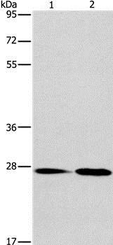 Western blot - Anti-NAT8 antibody (ab197793)