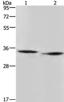 Western blot - Anti-N-acetylglucosamine-6-phosphate deacetylase antibody - C-terminal (ab197802)