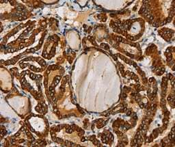 Immunohistochemistry (Formalin/PFA-fixed paraffin-embedded sections) - Anti-TLR6 antibody (ab197807)