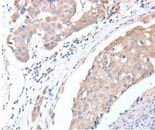 Immunohistochemistry (Formalin/PFA-fixed paraffin-embedded sections) - Anti-ACTL8 antibody - C-terminal (ab197831)