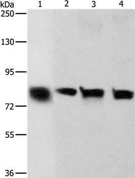 Western blot - Anti-K Cadherin/CDH6 antibody (ab197845)