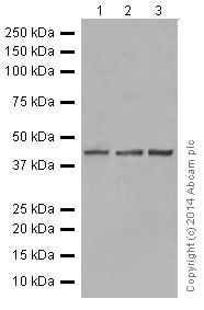 Western blot - Anti-Tin2 antibody [EPR15319] (ab197894)