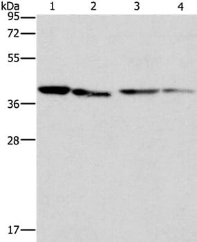 Western blot - Anti-BCAT2 antibody - C-terminal (ab197917)