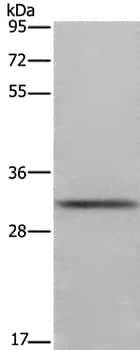 Western blot - Anti-CD89 antibody (ab197936)