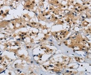 Immunohistochemistry (Formalin/PFA-fixed paraffin-embedded sections) - Anti-Cklfsf8 antibody - N-terminal (ab197974)