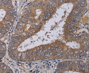 Immunohistochemistry (Formalin/PFA-fixed paraffin-embedded sections) - Anti-MCPIP1 antibody (ab197976)