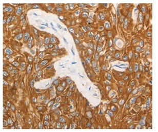 Immunohistochemistry (Formalin/PFA-fixed paraffin-embedded sections) - Anti-G-CSF antibody (ab197993)