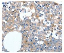 Immunohistochemistry (Formalin/PFA-fixed paraffin-embedded sections) - Anti-LILRB3 antibody (ab197999)