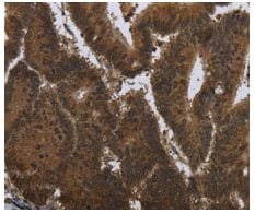 Immunohistochemistry (Formalin/PFA-fixed paraffin-embedded sections) - Anti-GCDFP 15 antibody (ab198018)