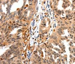 Immunohistochemistry (Formalin/PFA-fixed paraffin-embedded sections) - Anti-GAS 6 antibody (ab198027)