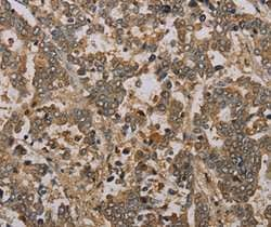 Immunohistochemistry (Formalin/PFA-fixed paraffin-embedded sections) - Anti-CCN3 antibody (ab198033)