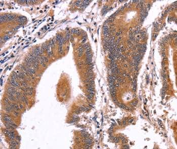 Immunohistochemistry (Formalin/PFA-fixed paraffin-embedded sections) - Anti-CRISP3 antibody (ab198048)