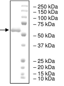 SDS-PAGE - Recombinant Human IP6K2 protein (Tagged) (ab198053)