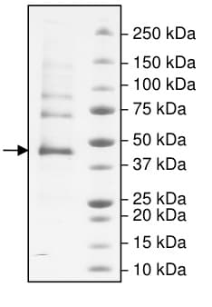 SDS-PAGE - Recombinant human Carbonic Anhydrase 9/CA9 protein (Active) (ab198056)