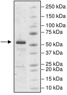 SDS-PAGE - Recombinant Human IP6K2 protein (Tagged) (Biotin) (ab198062)