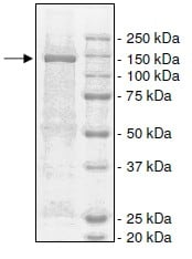 SDS-PAGE - Recombinant Human eNOS protein (Tagged) (ab198066)