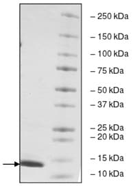 SDS-PAGE - Recombinant Human TAF1 protein (ab198086)