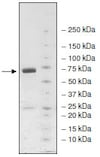 SDS-PAGE - Recombinant human KDM4C / GASC1 / JMJD2C protein (Tagged) (ab198094)