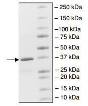 SDS-PAGE - Recombinant human CREBBP protein (ab198130)