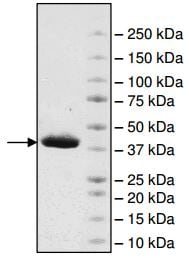 SDS-PAGE - Recombinant human ATAD2 protein (ab198131)