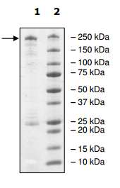 SDS-PAGE - Recombinant Human Dnmt1 protein (ab198140)