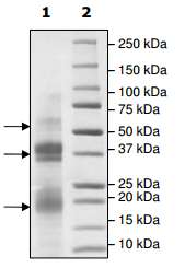 SDS-PAGE - Recombinant human Protein C  (ab198147)