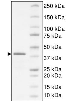 SDS-PAGE - Recombinant human ATAD2B protein (ab198150)
