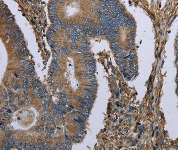 Immunohistochemistry (Formalin/PFA-fixed paraffin-embedded sections) - Anti-GANP antibody - N-terminal (ab198173)