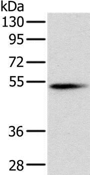 Western blot - Anti-Pancreatic Lipase/PTL antibody (ab198181)