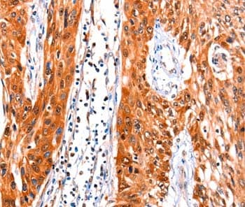 Immunohistochemistry (Formalin/PFA-fixed paraffin-embedded sections) - Anti-Fibulin 1 antibody (ab198187)