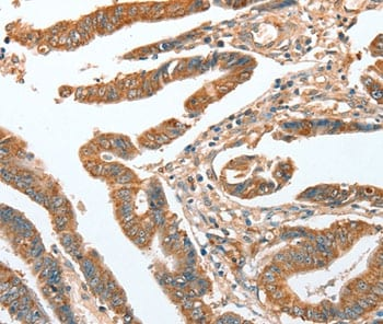 Immunohistochemistry (Formalin/PFA-fixed paraffin-embedded sections) - Anti-CKAP2/LB1 antibody (ab198188)