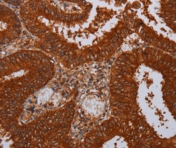 Immunohistochemistry (Formalin/PFA-fixed paraffin-embedded sections) - Anti-MFAP3L antibody (ab198191)