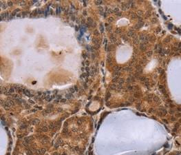 Immunohistochemistry (Formalin/PFA-fixed paraffin-embedded sections) - Anti-NDUFA2 antibody (ab198196)